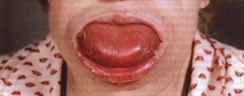 Макроглоссия у пожилой женщины