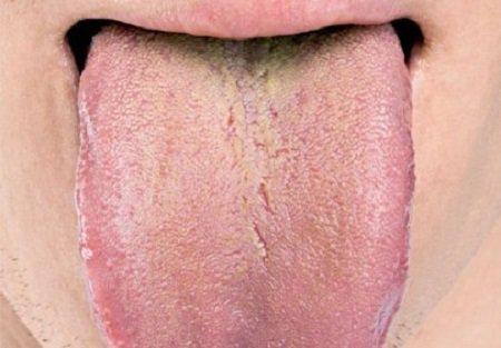 Мелкие трещинки и налет на языке