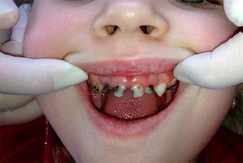 Много больных зубов у ребенка