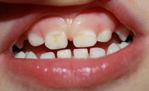 Начальная стадия кариеса молочных зубов