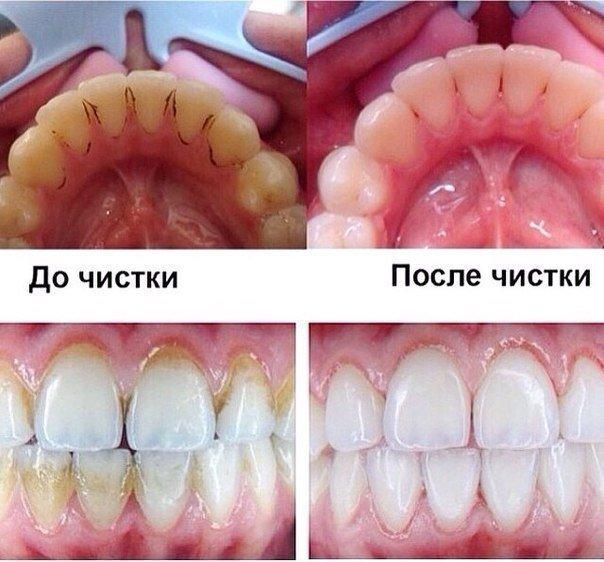 До и после чистки зубов у стоматолога