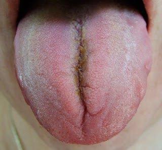 Налет в трещине языка