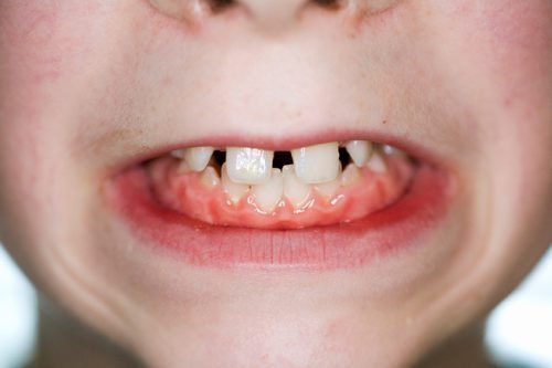 Нарушения прикуса зубов