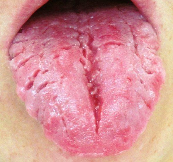 Глубокая трещина посредине языка