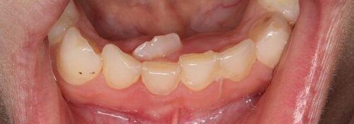 Один лишний зуб
