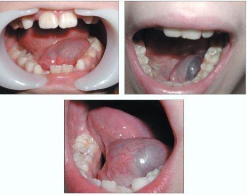 Опухоли слюнной железы под языком