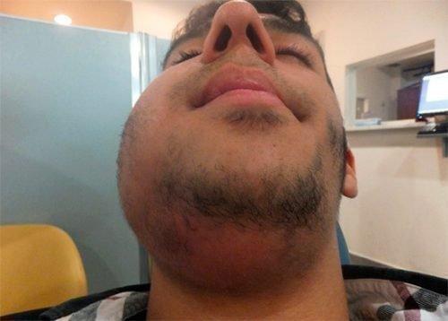Осложнение альвеолита на лице