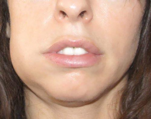 Отек лица при воспалении языка