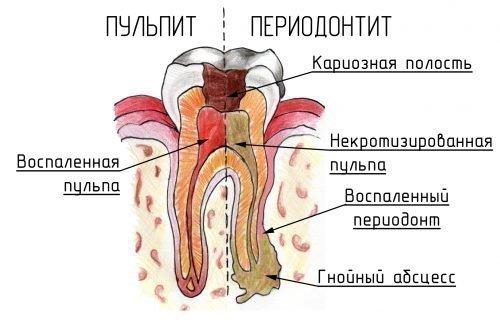 Пульпит и периодонтит - кариес на разных стадиях