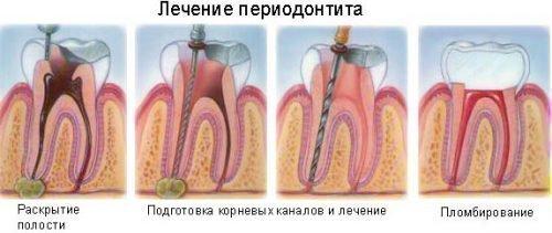 Лечение периодонтита - этапы