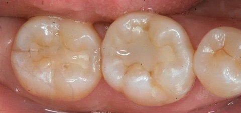 Пломбирование коренных зубов