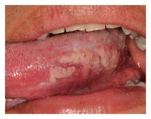 Плоскоклеточный рак на языке