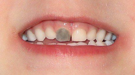Почернел зуб после травмы