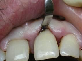 Зубной поддесневой камень