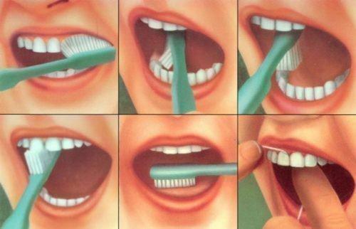 Правильная чистка зубов в картинках