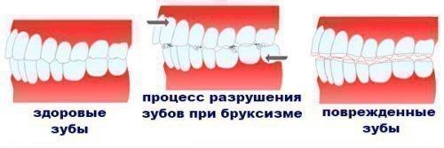 Процесс разрушения зубов при ночном скрипе