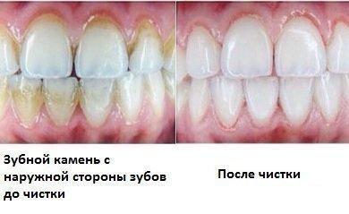 До и после чистки камня у стоматолога