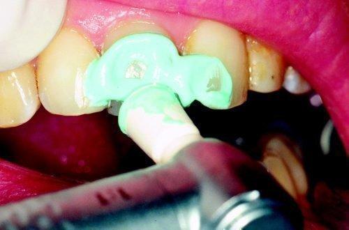 Профессиональная зубная паста - чистка