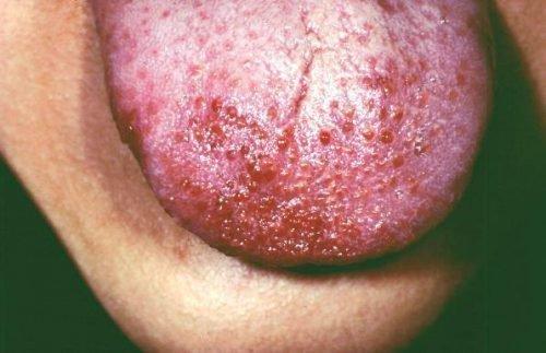 Прыщи на языке при аллергии