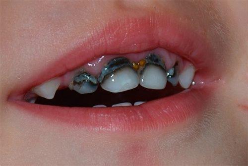 Серебрение зубов у ребенка