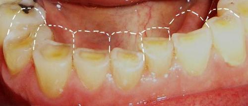 Стертые зубы при бруксизме