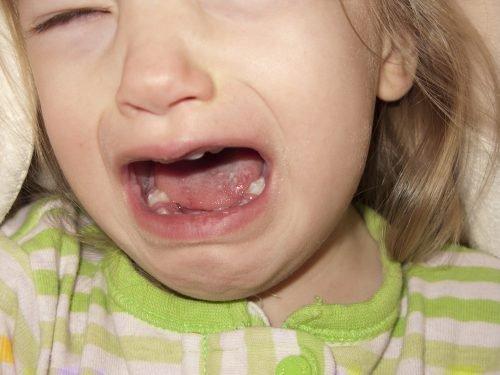 Стоматит у ребенка во рту