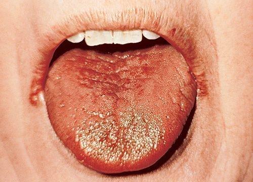 Глоссит и заеды - симптомы анемии