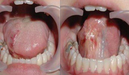 Травма языка у ребенка