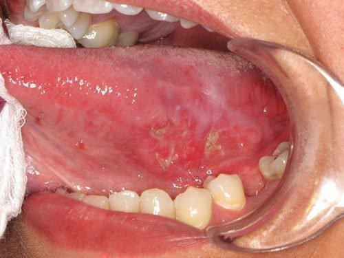 Травматические язвы внизу языка