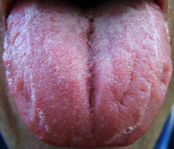 Трещина и пена на языке во время бронхита