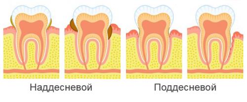 Два вида зубного камня