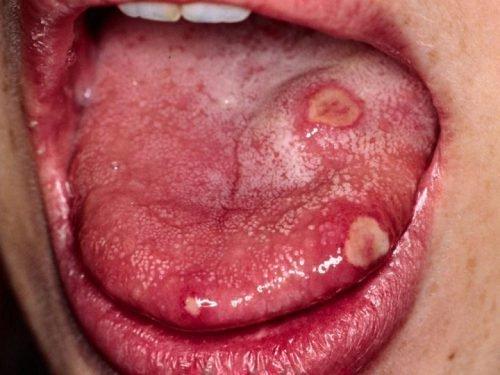 Вирусный глоссит языка