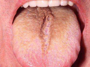 Волосатая лейкоплакия у курильщика