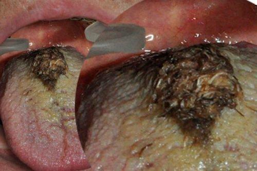Волосатая лейкоплакия - черные сосочки