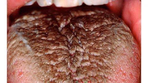 Лейкоплакия - волосатый язык