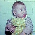Макроглоссия (увеличенный язык): симптомы и методы лечения
