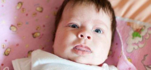 Врожденный гипертиреоз и макроглоссия