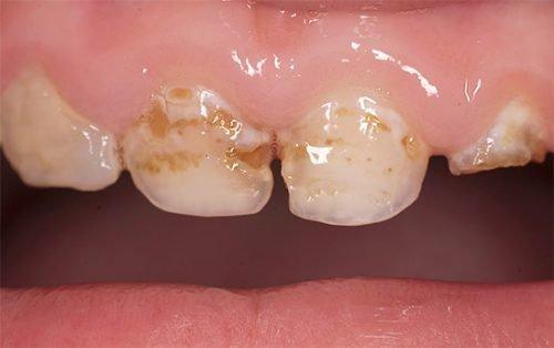 Вторая стадия бутылочного кариеса на зубах