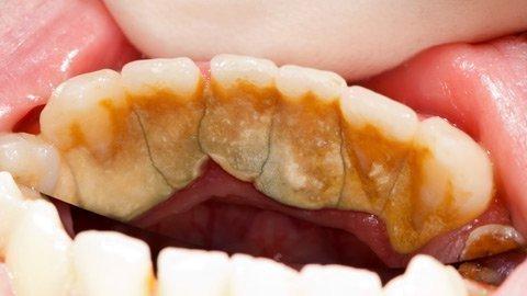 Запущенный камень на зубах