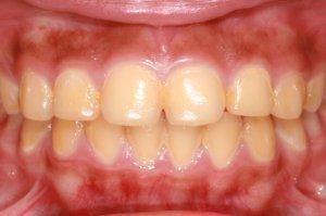 Природный желтоватый цвет зубов