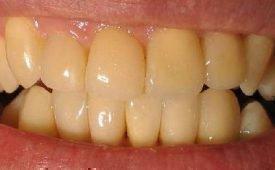 Причины желтого налета на зубах