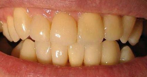 Желтоватый цвет зубов