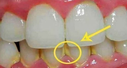 Желтый налет между зубами