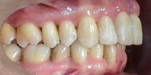 Желтый мягкий налет на зубах