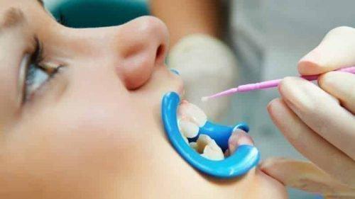 Покрытие зубов жидкой пломбой