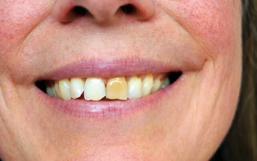 Пожелтевший зуб
