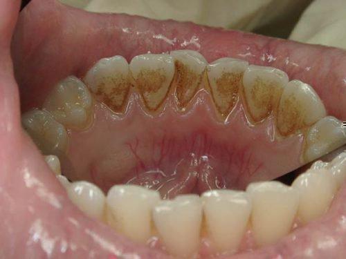 Зубной камень коричневого цвета