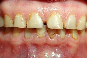 Желтиый зубной камень