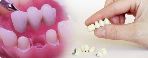 Зубные металлокерамические коронки