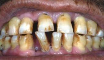 Желтыйе зубы курильщика